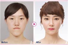 let美人中国篇前后对比图什么样?韩国哪家医院做的?