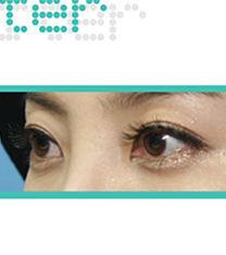 韩国ohkims整形三眼皮矫正案例前后对比图
