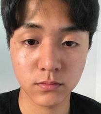 韩国普瑞美眼鼻综合手术前后对比照片_术前
