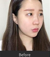 韩国张裕珍综合隆鼻整形30天案例前后对比图