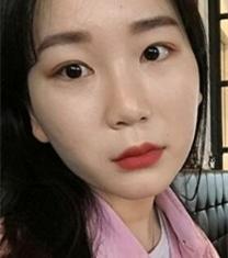 韩国普瑞美张裕珍福鼻矫正前后对比照片