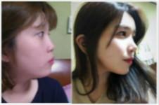 肋软骨隆鼻弯曲变形是真的吗?怎么才能避免