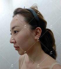 韩国JW医院面部脂肪填充案例