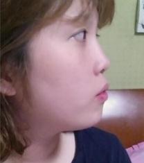 韩国然美之鼻综合手术前后对比照片