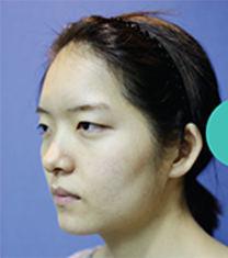 韩国ohkims整形眼形矫正+隆鼻修复+颧骨+下颌角案例