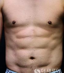 腰腹吸脂案例对比
