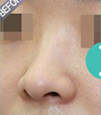 韩国ohkims隆鼻整形手术前后对比照片案例