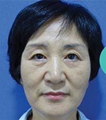 韩国ohkims整形除皱做的好不好?案例对比图告诉你!