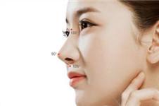 揭秘韩国4月31日歪鼻子矫正手术前后照片