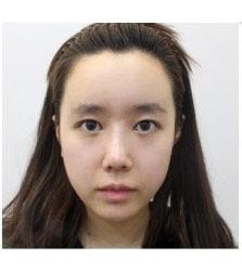 韩国ace鼻部+童颜整形前后对比