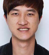 韩国now美口腔颌面外科双鄂手术案例_术前