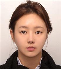 韩国爱宝地包天手术效果前后对比_术后