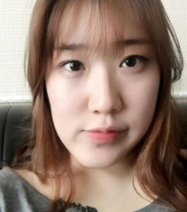 韩国爱宝整形医院双鄂整形前后对比照片