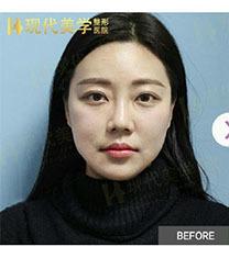 韩国现代美学唇部整形日记分享