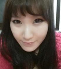 韩国爱宝整形医院轮廓手术前后照片