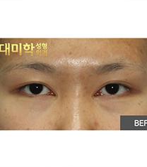 韩国现代美学内眼角修复案例_术前