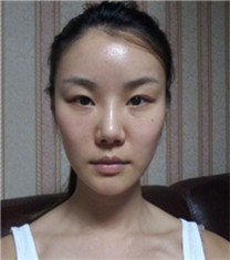 韩国必妩医院轮廓三件套+眼鼻修复+贵族手术全脸整形对比