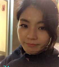 韩国现代美学玻尿酸隆鼻恢复对比图