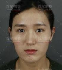上海首尔丽格洪性范轮廓三件套+面部填充前后照片