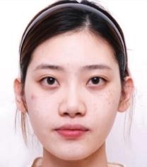 韩国世大特眼鼻综合整形前后对比照片