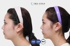 垫下巴整形手术韩国哪家医院好,术后效果怎么样?