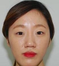 齐娥整形外科双鄂手术案例