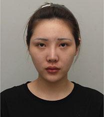 韩国丽珍整形医院-韩国丽珍整形鼻修复案例对比