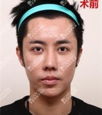 韩国凯伦秀康文硕额头缩小术前后对比照片