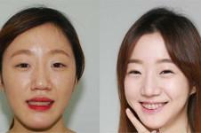 齐娥牙科姜永浩手术案例,这几组必须了解!
