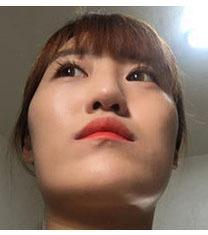 韩国美迪莹医院面部轮廓恢复日记
