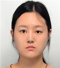 韩国爱宝地包天手术效果前后对比_术前