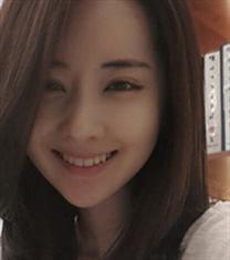 韩国必妩下颌角手术真人案例3个月恢复对比