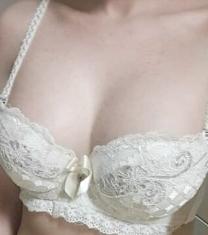 韩国世大特整形医院隆胸手术前后对比照片
