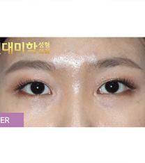 韩国现代美学内眼角修复案例