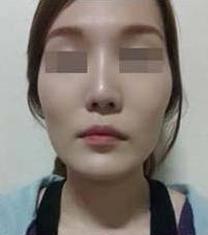 韩国妩丽整形外科轮廓整形案例