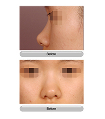 韩国狎鸥亭首尔整形医院隆鼻手术对比图