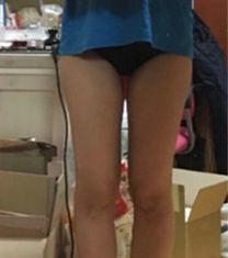 韩国美线吸脂医院瘦大小腿案例图