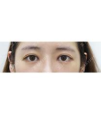 韩国jayjun双眼皮手术前后对比图