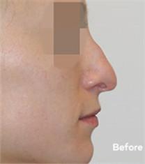 韩国VIP整形外科鹰钩鼻矫正手术前后差异对比