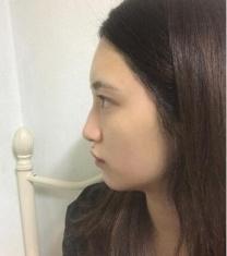 韩国丽丝塔短鼻矫正手术前后照片