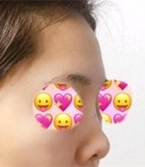 韩国丽丝塔朝天鼻修复手术前后照片