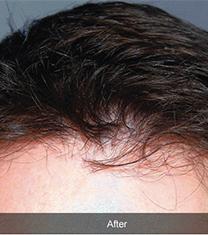 韩国CU可琳雅植发对比图