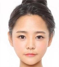 韩国必妩长曲线下颌角整形真人案例前后对比