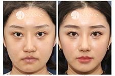韩式肋骨隆鼻手术有什么优势和缺点?