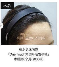 永长毛发移植医院2000根发际线治疗6个月案例_术后