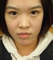 韩国高诺鼻医院福鼻整形手术前后对比照片_术前