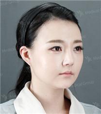 韩国JK发际线种植手术前后对比_术后