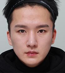 韩国佳轮韩男士轮廓+眼部整形案例图_术后