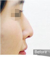韩国olive驼峰鼻整形术后照片_术前