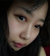 韩国soonplus整形网外科眼综合手术前后对比
